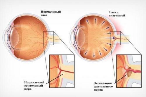 Что такое глаукома глаза