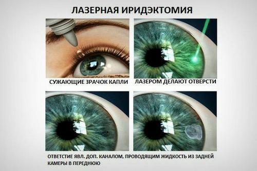 Методы лазерного лечения глаукомы