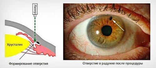 Операции при глаукоме, лечение