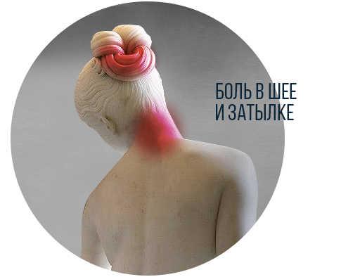 О чем расскажет головная боль?